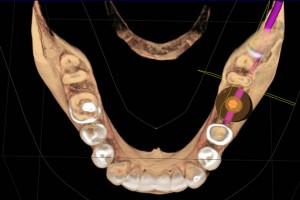 Visualización de implante corte axial
